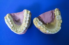 Model of the jaws on the dentist`s desk on a blue background. Model of the jaws on the dentist`s desk on a blue fond stock photography