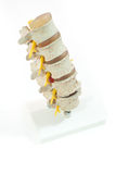 Model of spinal disc herniation stock photography