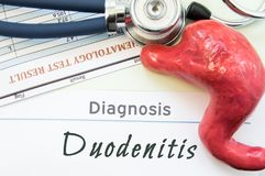 Model of stomach, blood test and stethoscope lying next to written title on paper diagnosis Duodenitis. Concept photo of causes, d. Iagnostic, treatment and Stock Images