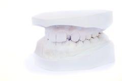 model tänder för gypsum arkivfoto
