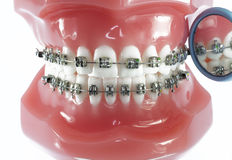 Model of Teeth with Braces and Dental Mirror Stock Images
