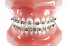 Model of Teeth with Braces Royalty Free Stock Photos
