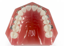 Model of Teeth with braces viewed from the top Stock Photos