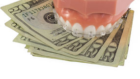 Model of Teeth with Clear Ceraminc Braces and Money Stock Photos