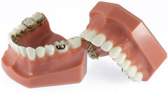 Model of Teeth with Lingual Braces. Model of teeth in orthodontic treatment with lingual (hidden) braces Stock Image