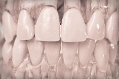 Model teeth in plastic gums. A teaching model of dental anatomy has teeth set in clear plastic so both crown and root form are visible Stock Photo