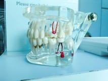 Model of teeth root cure or repair and fill teeth. Model of the teeth root cure or repair and fill teeth Royalty Free Stock Image