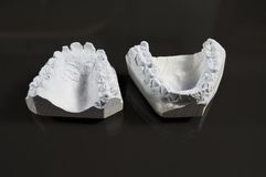 Model of tooth Royalty Free Stock Photos