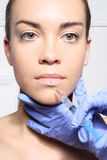 Modelado de la boca, medicina estética Fotos de archivo libres de regalías