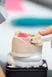 Modeling wax. Work on dentures with modeling wax in a dental laboratory Royalty Free Stock Photography