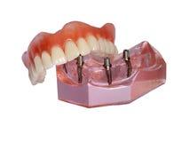 Modell av en käke och en tandprotes 2 royaltyfria foton
