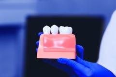 Modell av tänder med den tand- implantatet i händerna av den verkliga doktorn arkivbilder