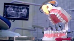 Modell des Kiefers und der zahnmedizinischen Werkzeuge auf einem Hintergrund Röntgenstrahl stock footage