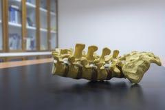 Modell des lumbalen Dorns Stockbild