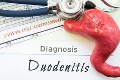 Modell des Magens, der Blutprobe und des Stethoskops, die nahe bei schriftlichem Titel auf Papierdiagnose Duodenitis liegen Konze Stockbilder