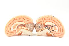 Modell des menschlichen Gehirns Lizenzfreies Stockbild