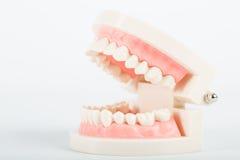 Modell för tand- implantat Fotografering för Bildbyråer