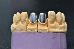 Modell för tand- implantat för tänder Royaltyfri Bild