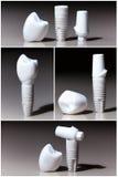 Modelle von zahnmedizinischem, Implantate Stockbilder