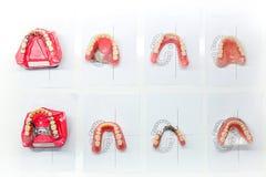 Modeller av den tand- kronan royaltyfri bild