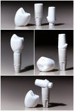 Modeller av tand-, implantat Arkivbilder
