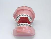 Modello artificiale della mandibola umana con i ganci variopinti del cavo allegati fotografie stock libere da diritti