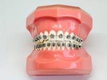 Modello artificiale della mandibola umana con i ganci variopinti del cavo allegati immagine stock libera da diritti