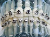 Modello artificiale della mandibola umana con i ganci variopinti del cavo allegati immagini stock libere da diritti