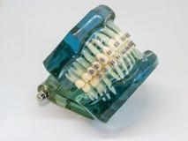 Modello artificiale della mandibola umana con i ganci variopinti del cavo allegati immagine stock