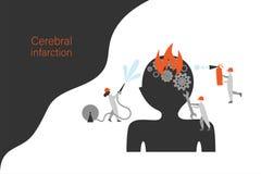 Modello cerebrale dell'insegna di vettore di infarto royalty illustrazione gratis