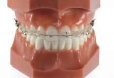 Modello dei denti con i chiari ganci di Ceraminc Immagini Stock