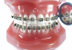 Modello dei denti con i ganci e lo specchio dentario Immagini Stock