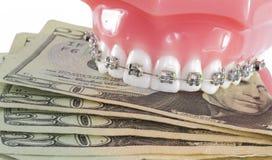 Modello dei denti con i ganci ed i soldi Fotografie Stock Libere da Diritti