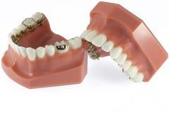 Modello dei denti con i ganci linguali Immagine Stock