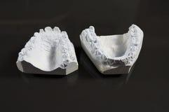 Modello del dente Fotografie Stock Libere da Diritti