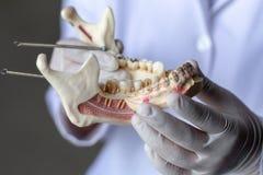 Modello del dente per istruzione in laboratorio fotografia stock libera da diritti