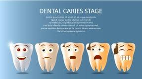 Modello dell'insegna del manifesto di vettore della fase della carie dentale illustrazione vettoriale
