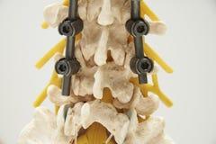 Modello della fissazione dello strumento del modello umano del tratto lombare della colonna vertebrale immagini stock libere da diritti