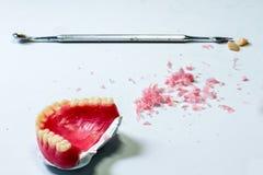 Modello delle protesi dentarie della cera Fotografie Stock