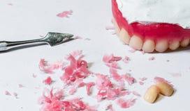 Modello delle protesi dentarie della cera Fotografia Stock