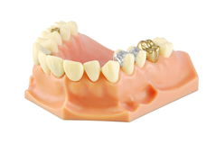 Modello dentale Fotografie Stock Libere da Diritti