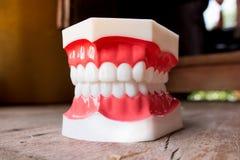 Modello dentale dei denti Fotografia Stock Libera da Diritti