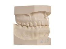 Modello dentale dei denti umani su bianco Immagine Stock