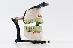 Modello dentale dell'innesto della cera fotografia stock libera da diritti