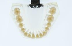 Modello dentario dei denti Fotografie Stock Libere da Diritti