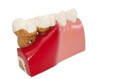 Modello di dentale. Fotografia Stock