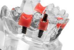 Modello di vetro della mandibola Fotografia Stock