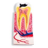 Modelo aislado de los dientes de la carie de la demostración del dentista Foto de archivo