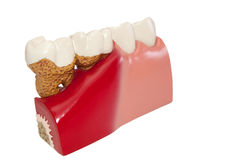 Modelo de dental. Foto de Stock
