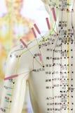 Modelo 03 de la acupuntura Foto de archivo
